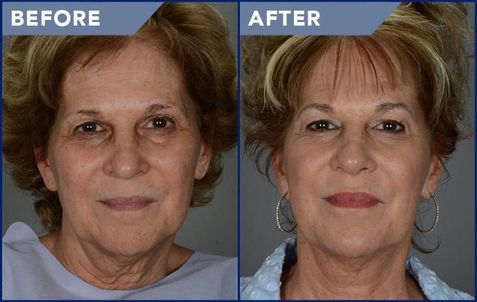 Facial Laser Resurfacing Photos Soderstrom Skin Institute