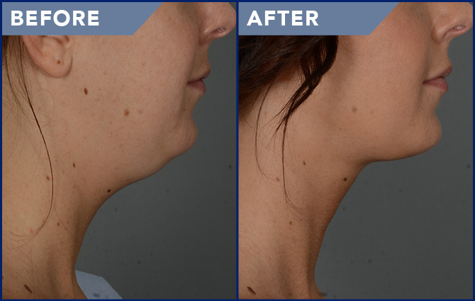 Smartlipo Neck Before and After