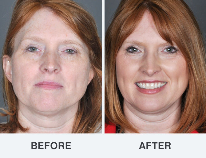 Opinion you Facial resurfacing before and after right!