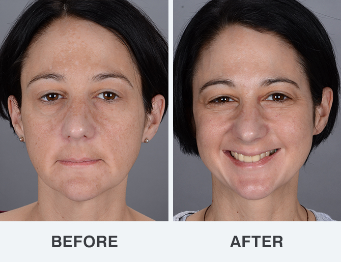 Facial resurfacing before and after special case