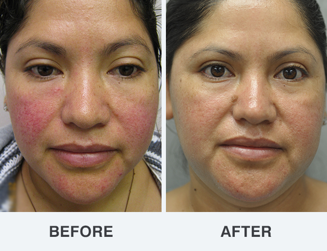 Rosacea Treatment Photos Soderstrom Skin Institute