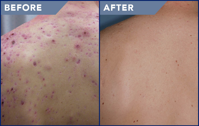 Acne Treatment Photos Soderstrom Skin Institute