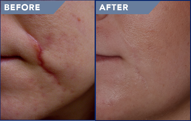 Laser Scar Removal Photos Soderstrom Skin Institute